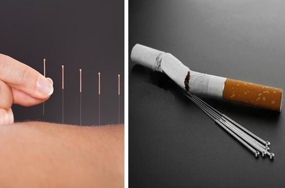 Hochwertige Geschenke für Männer und Frauen: Akupuntur-Rauchentwöhnung